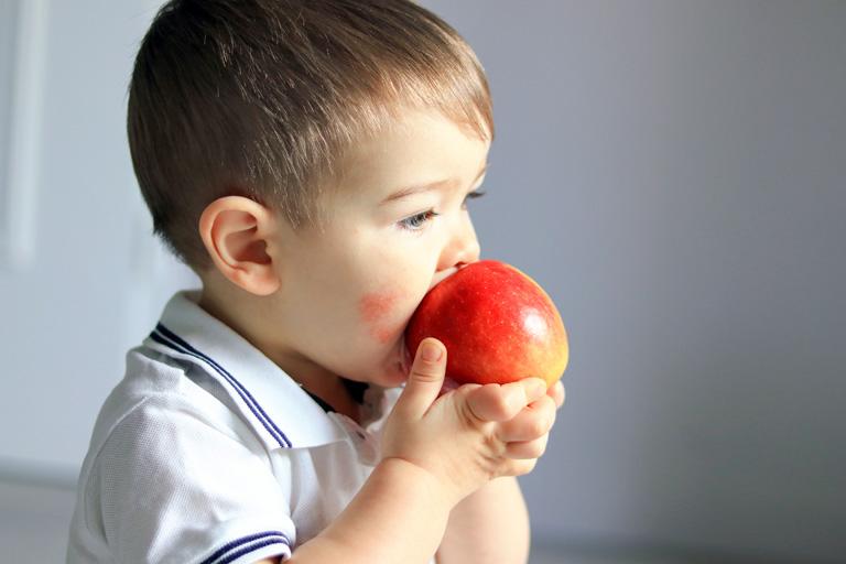Bei Neurodermitis beim Kleinkind kann die Ernährung eine Rolle als Schubauslöser spielen.