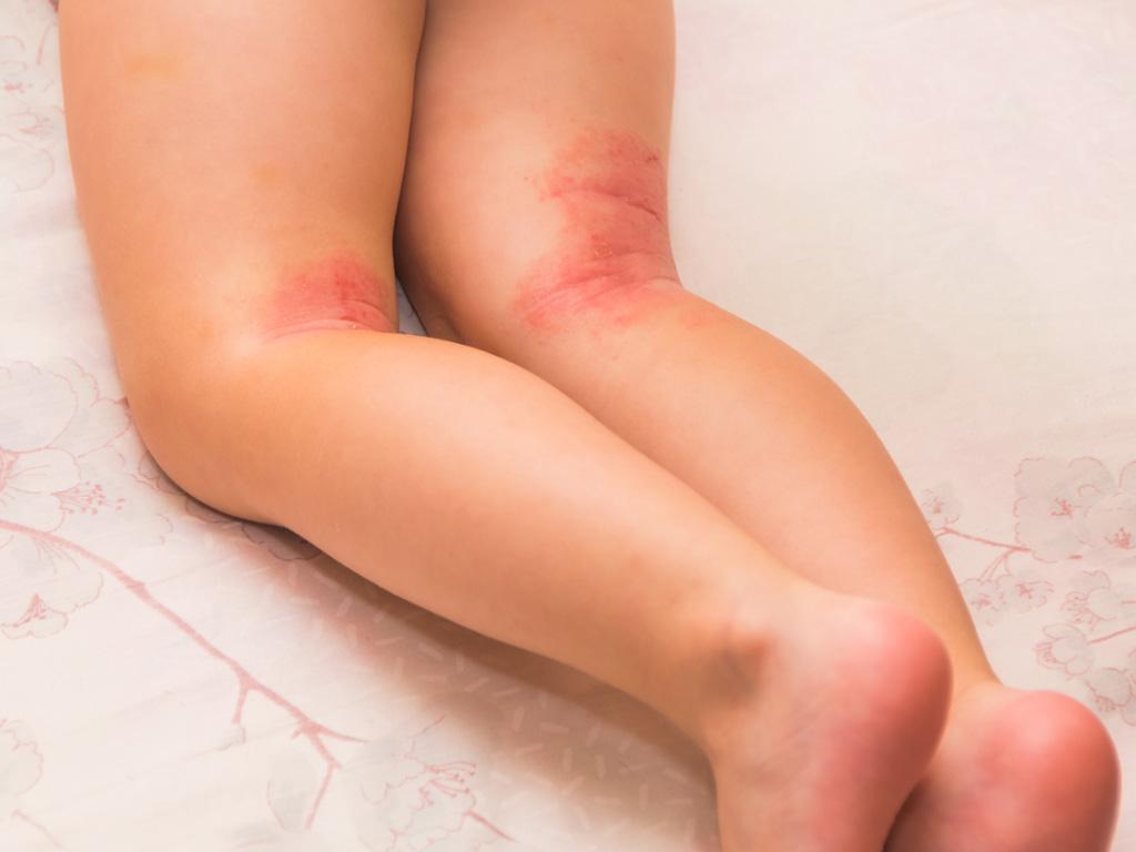 Neurodermitis beim Baby: Erste Anzeichen können Ekzeme in den Kniebeugen sein.