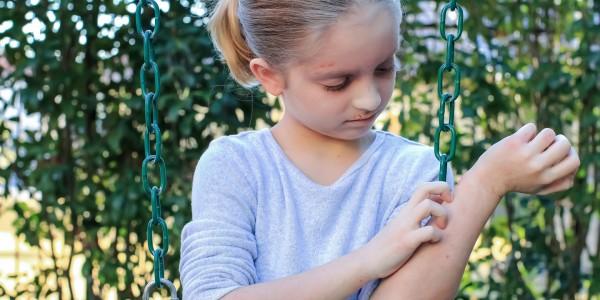 neurodermitis-bei-kindern-juckender-Haustausschlag